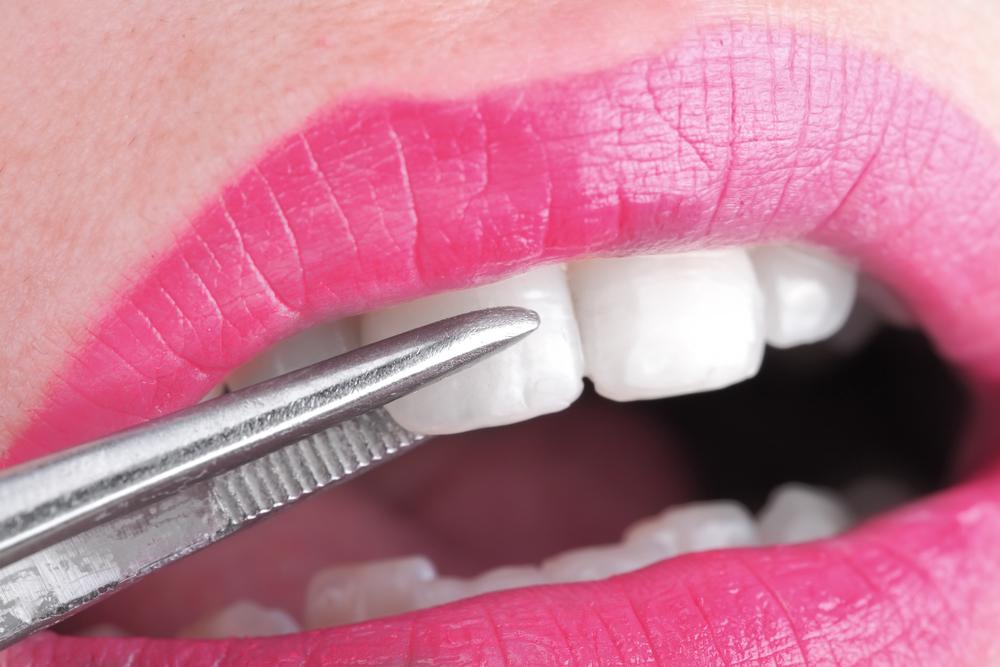 colocación carillas dentales