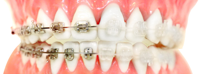 Brackets estéticos vs brackets porcelana
