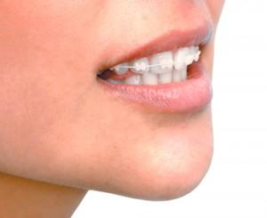 brackets-esteticos-zirconio