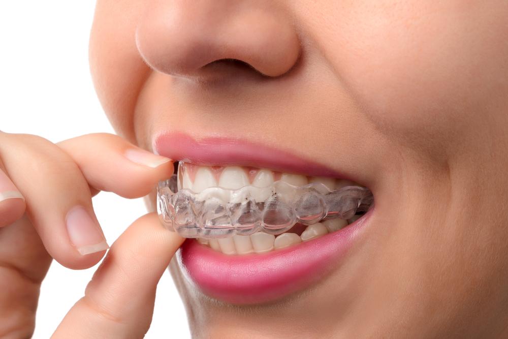 ortodoncia invisible con Invisalign