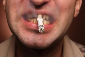 cáncer-de-boca