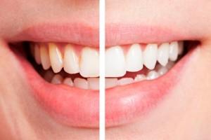 blanqueamiento-dental-dientes