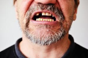pérdida de un diente