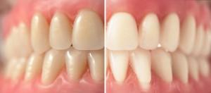 dientes decolorados
