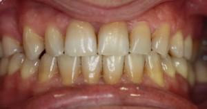 manchas en los dientes por tetraciclinas