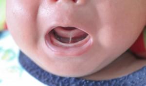 microglosia