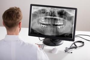 tecnología en implantología