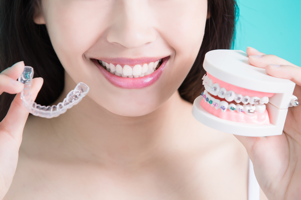 higiene dental según tipos de ortodoncia