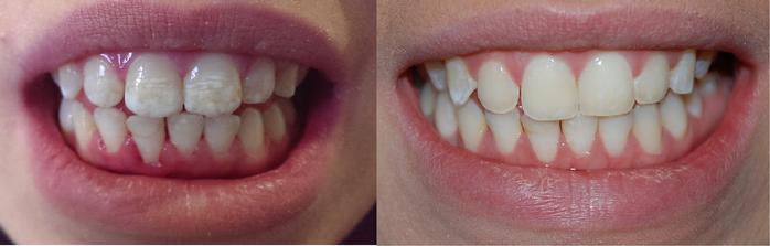 microabrasion-dental